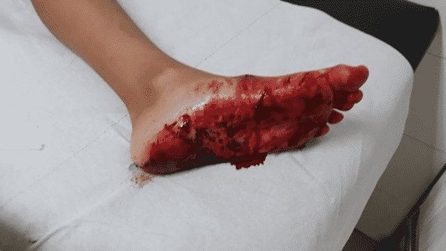 Ataque del tiburón marrajo mordedura en el pie