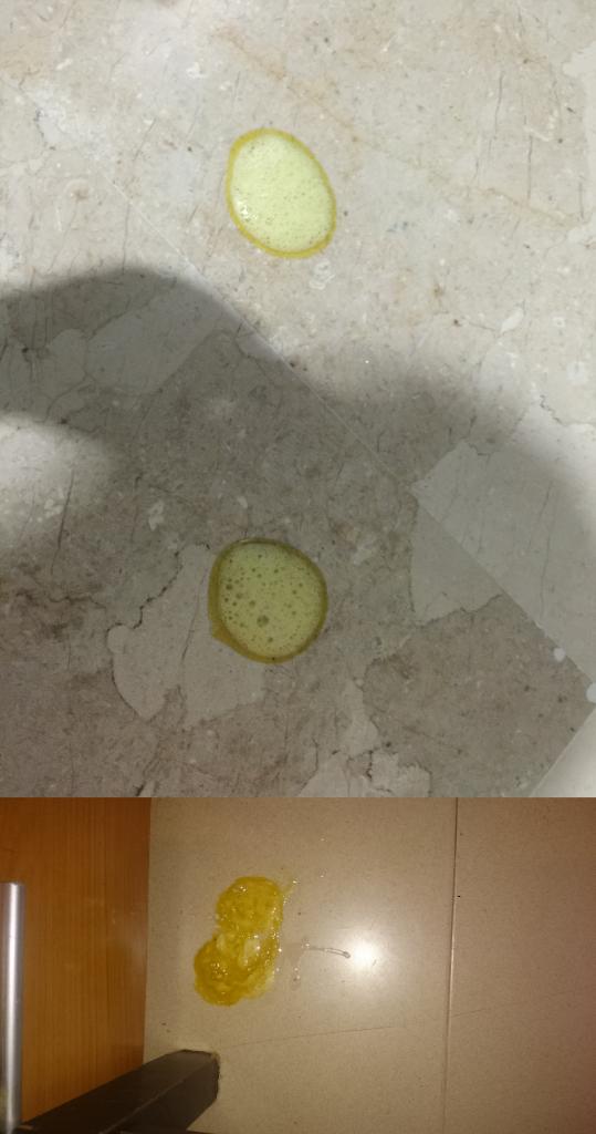 Vomito amarillo